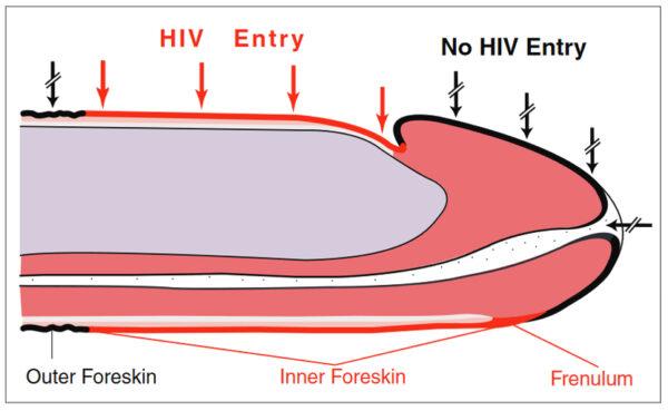 HIV entry foreskin